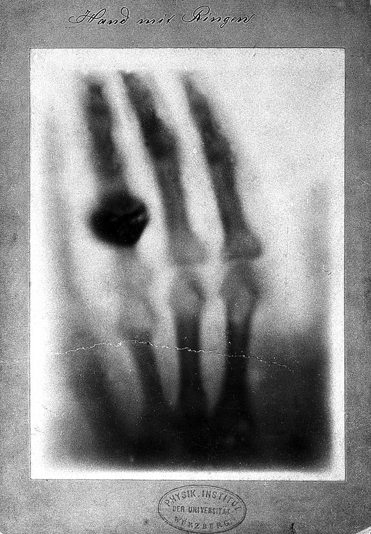 Early x-ray of a hand taken by Wilhelm Roentgen